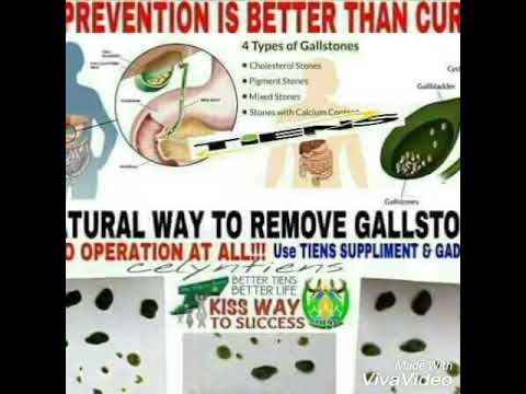 Xxx Mp4 TESTIMONY OF GALLSTONE REMOVAL IN NATURAL WAY USING TIENS HELBAL FOOD SUPPLEMENTS AND APARATUS 3gp Sex