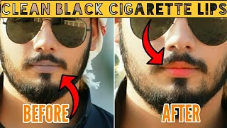 How To Get Rid Of Dark (Black) lips at Home | Get Soft Pink Lips |