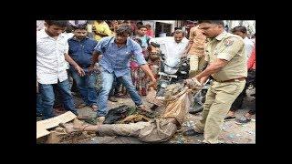 सालों से फूला हुआ था भिखारी का पेट,जब सच्चाई सामने आई तो लोगो  को नहीं हुआ यकीन !! ALL INDIA NEWS