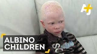 Albino Kids In Tanzania Are Being Attacked For Body Parts