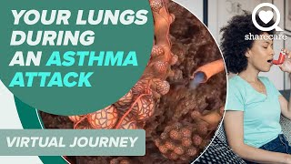 Patient Journey: What Happens in Your Lungs During an Asthma Attack (360 Video)