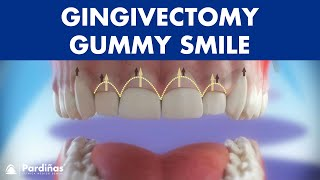 Gingivectomy - Treatment of gummy smile ©