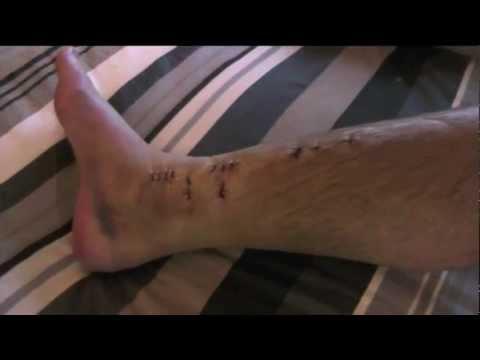 Broken Leg Operation to Insert Titanium Plate