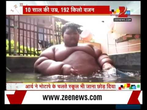 Indonesia :  A 10 year old boy weighed 192kg
