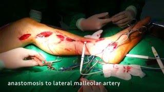 below the knee (BTK) Pedal artery bypass surgery for critical limb ischemia
