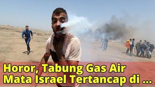 Horor, Tabung Gas Air Mata Israel Tertancap di Pipi Pria Palestina