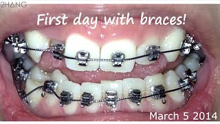 BRACES BEFORE AND AFTER TIME LAPSE