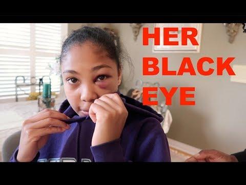 Xxx Mp4 HER BLACK EYE 3gp Sex