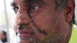 Cancer is curable   Dr Jashwant Jain   Success Story   RIMS