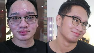 How I Dried My Pimples in 3 Days [TAGALOG] / Sir Paul Maynard