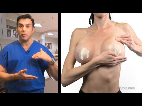 Xxx Mp4 Post Operative Breast Massage 3gp Sex