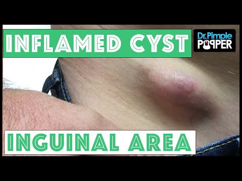 Inflamed Egg Shaped Cyst Removed Right inguinal area