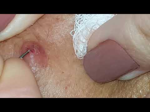 Xxx Mp4 Poking And Popping A Cyst 3gp Sex