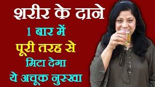 Prickly Heat Home Remedies in Hindi घमौरियों के घरेलू इलाज Beauty Tips in Hindi by Sonia Goyal #30