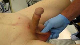 Inflation and deflation of penile implant