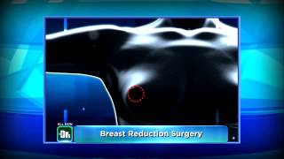 Part II: The Doctors TV Show Breast Reduction Plastic Surgeon Dr. Motykie Beverly Hills