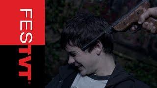 Summer Scars - Trailer