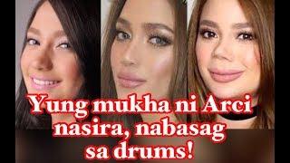 Arci Munoz Nose Nasira, Nabasag sa Drums Kaya Nagpa-Retoke