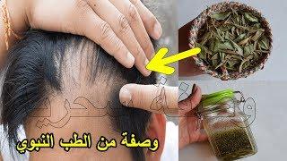 مدكور في القرآن لعلاج تساقط الشعر تُنبِت وتملأ الفراغات من الامام للرجال والنساء من الطب النبوي