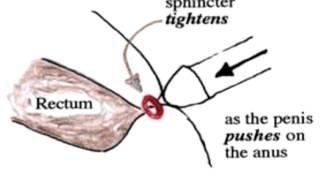 Penis in anus