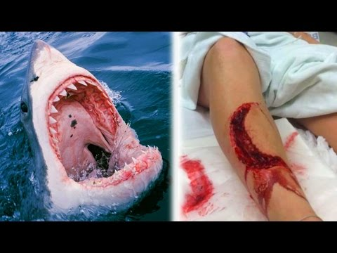 10 Unbelievable Shark Attacks WARNING GRAPHIC CONTENT
