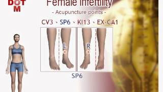 Female infertility DIY acupuncture points【12MH】
