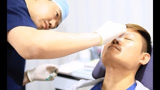 Plastic Surgery in Korea Review & Info | Non-Surgical Nose Job (Liquid Rhinoplasty)