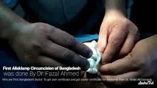 First Alisklamp Circumcision of Bangladesh was done by Dr. Fazal Ahmed