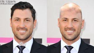 Are Bald Men Attractive?
