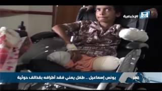 يونس إسماعيل .. طفل يمني فقد أطرافه بقذائف حوثية