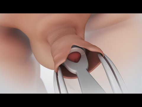 Patient Education Video Circumcision