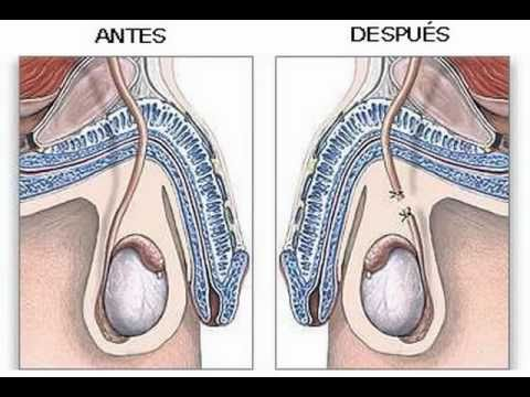 Vasectomía Sin Bisturí. Dr. Susaníbar. Urología Peruana