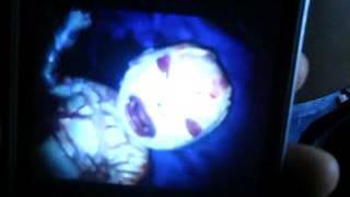 ভাই এই ভিডিও দেখুন মাত্র 36 সেকেন্ড ঠোঁটে চোখে জন্মের দাগ.  মা ইন্ডিয়ান সিরিয়াল  কিরন মালার ভক্ত