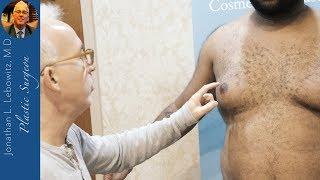 Utilizing My Talents! BIG Gynecomastia Surgery, The Long Island VaserLipo Center, NY By Dr. Lebowitz