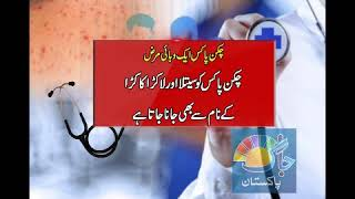 Chickenpox ìs a very contagious viral infection Dr arshad humayun 'S interview on Jaag tv