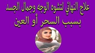 علاج النهائي لتشوه الوجه وجمال الجسد👸 بسبب السحر أو العين الراقي المغربي رشيد ابو اسحاق