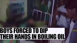 MP children forced to dip hands in hot oil : Watch video | Oneindia News