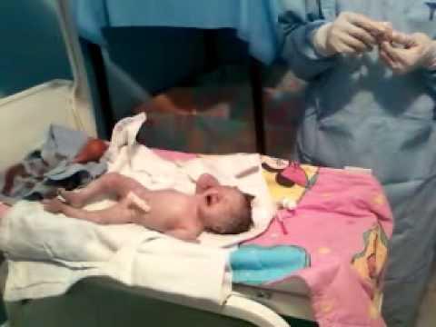 Nacimiento de 34 semanas Silvia Daniella Barrios Cárdenas