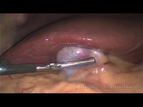 Xxx Mp4 Gallbladder Removal Surgery 3gp Sex