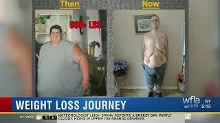 Former 700 lb. man talks about weightloss
