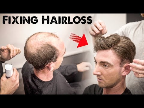 Mens Hairloss Treatment 2.0 Amazing Hairstyle Transformation Does it Work BluMaan 2018