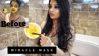 Testing Priyanka Chopra's MIRACLE mask *INSTANT RESULTS* All natural mask