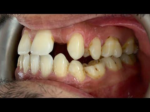 Diş eti kanaması ağız kokusu tedavisi. Zirkonyum diş kaplama ve koruyucu tedaviler.