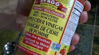 5 Reasons to Drink Apple Cider Vinegar | FitForTwoTV