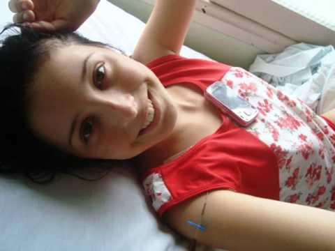 Minha cirurgia de escoliose