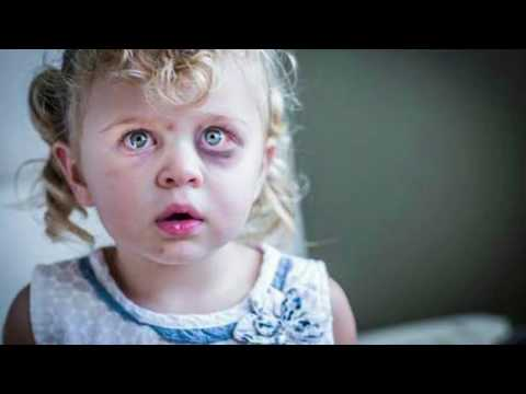 Xxx Mp4 Child Abuse Victims In Pakistan A History Of Injustice Urdu Hindi 3gp Sex