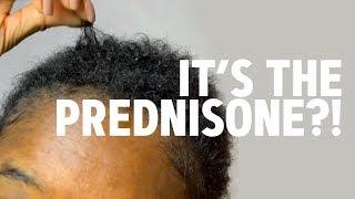 I CUT OFF MY BRAIDLOCS — PREDNISONE THINNED OUT MY HAIR