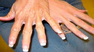 How To Get Younger Looking Hands: Home Remedies for Dry and Rough Hands
