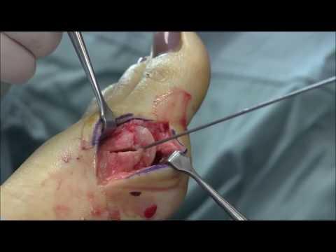Xxx Mp4 Gout Foot Bump Removal Surgery 3gp Sex