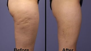 fastest way to get rid of cellulite - symulast